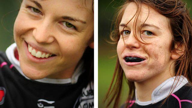 sport e dentista